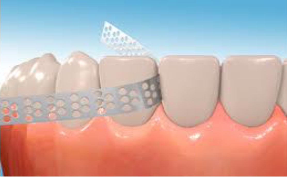 Invisalign IPR stands for Interproximal Reduction